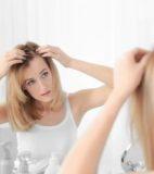 女性の薄毛の対策