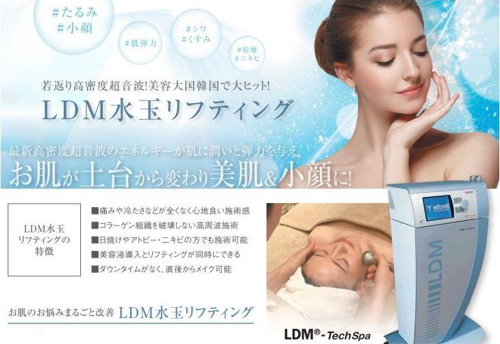 LDM水玉リフティング